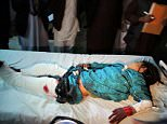 20 wedding guests killed and more wounded by mortar rounds fired by Afghanistan army
